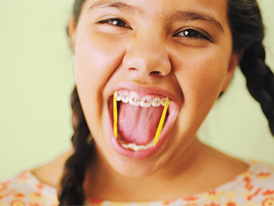 What young teen girls with braces tongue