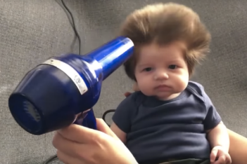 baby with a lot of hair-thumb