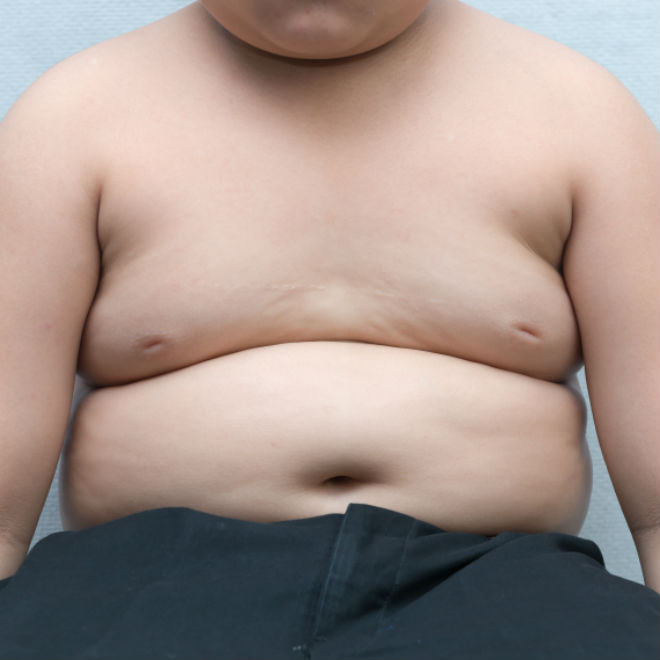 Chubby kid Article