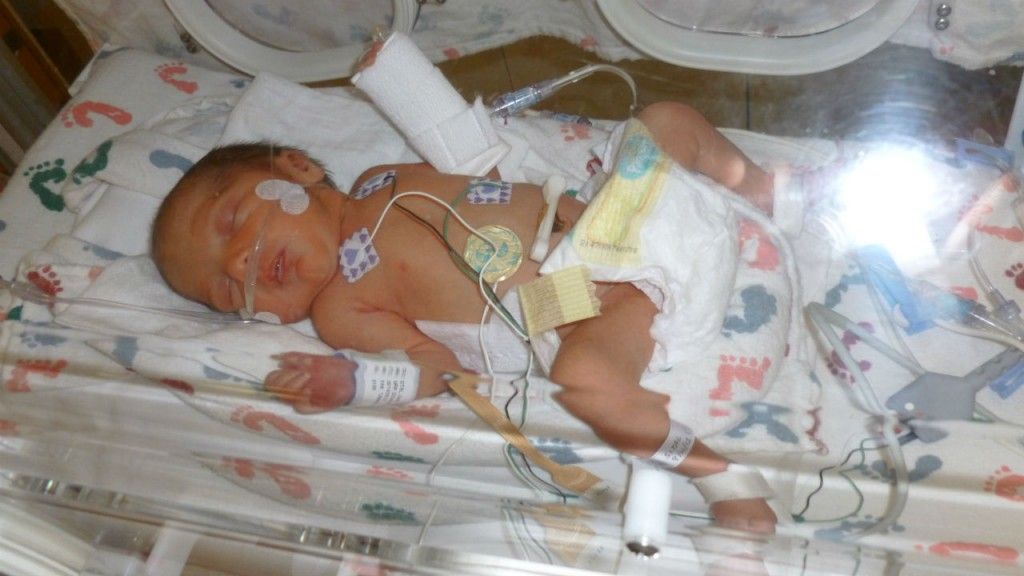 The Nicu Never Leaves You