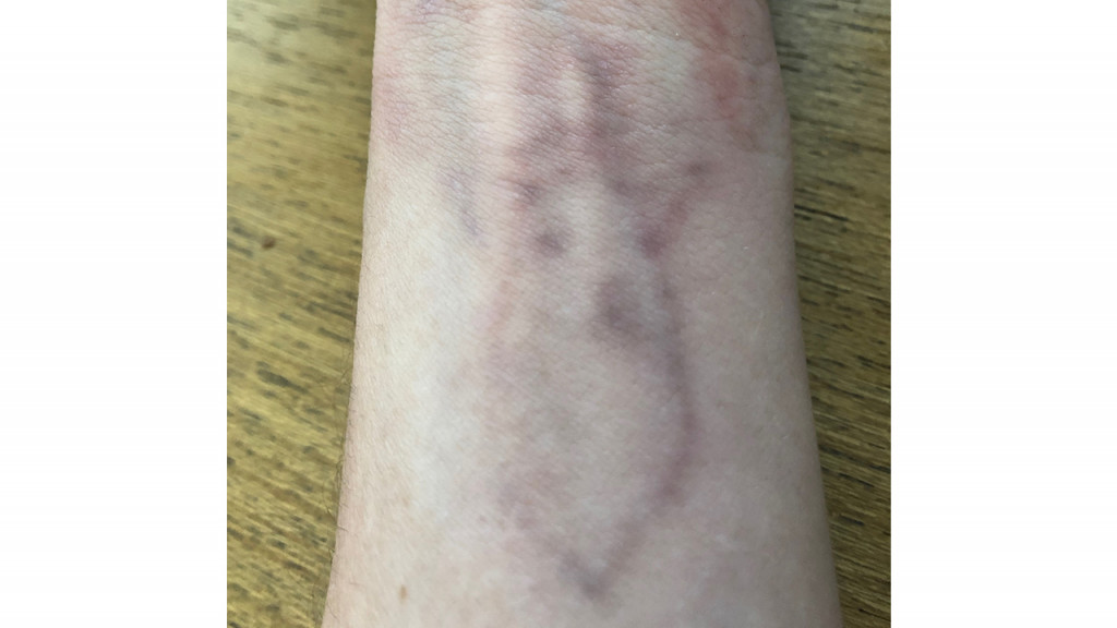 Inner wrist with a scarred and faded image of a deer tattoo.