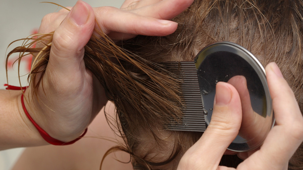Combing lice out of the hair