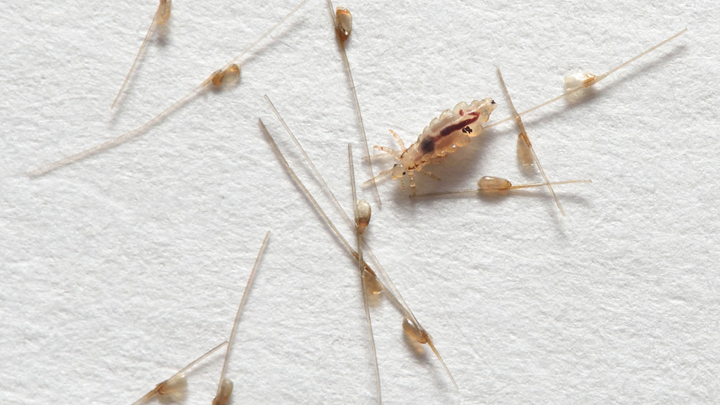 Lice in light coloured hair